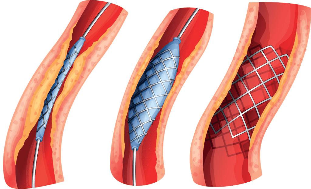 шунтирование воротной вены